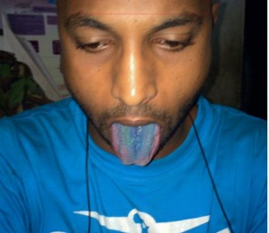 A drug user displays a blue tongue from repeated use of narcotics.