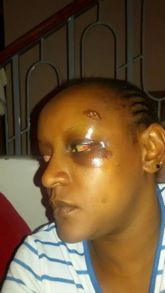 Wanjeri Nderu, a  Social justice crusader and mother of 3 was attacked for her tweets speaking out on corruption